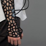 A 3D Printed Cast That Can Heal Your Bones Faster